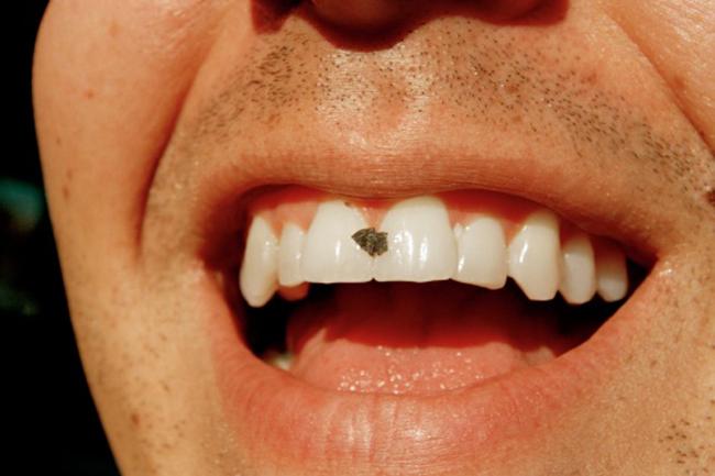 दांत में कुछ फंसना