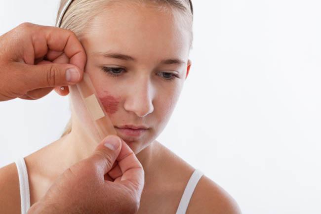 त्वचा की सूजन