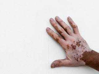 What is the prognosis of Vitiligo?