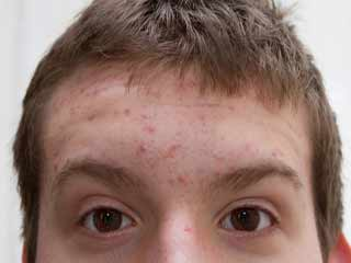 What are the causes of Rosacea?