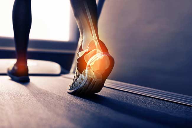 Plantar fasciitis: Tenderness on your heel or bottom of foot.