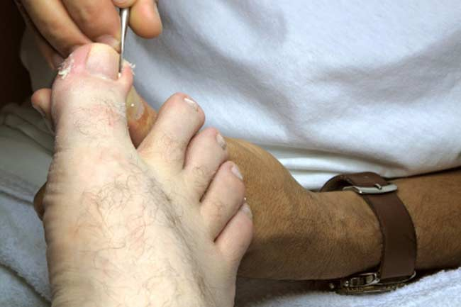 Ingrown toenail: Soreness or swelling on the sides of your toes.