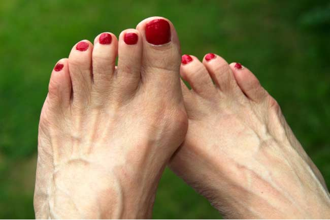Bunion: Pain on the side of your big toe.