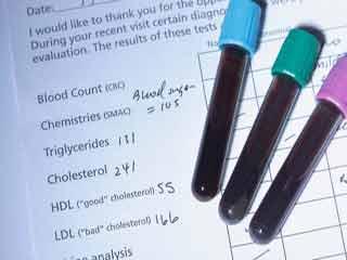 ब्लड टेस्ट से जुड़ी कुछ बातों को समझना जरूरी