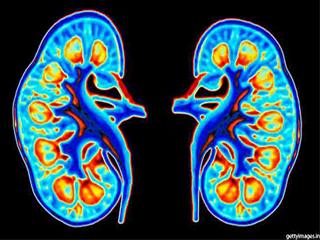 डायबिटीज में ये लक्षण देता है किडनी फेल्योर का इशारा