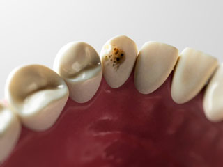 Tooth Cavities increase the Risk of Heart Disease