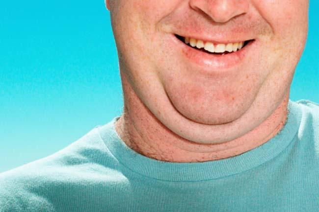 गर्दन की चर्बी को दूर करने के उपाय