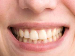 Tooth Discolouration after Trauma