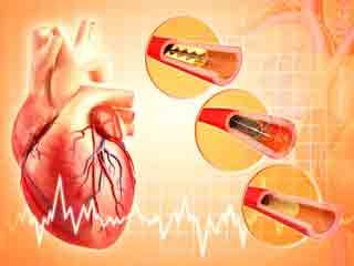 हृदय रोग की संभावनाओं को कम करती है मूंगफली