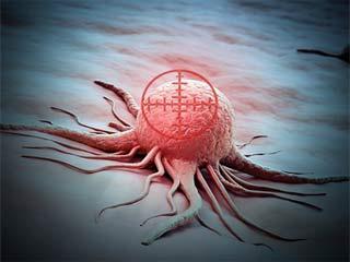 पैंक्रियाटिक कैंसर का पता जल्द चल सकेगा