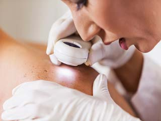 5 Reasons why skin cancer surgery is not so scary