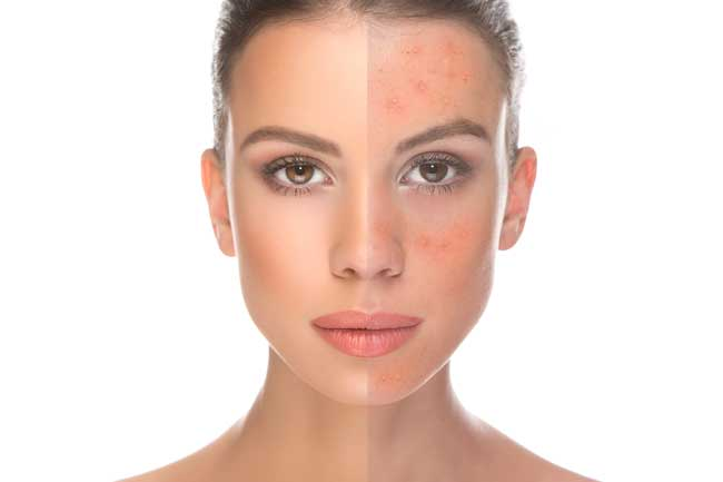 Rosacea can be hormonal