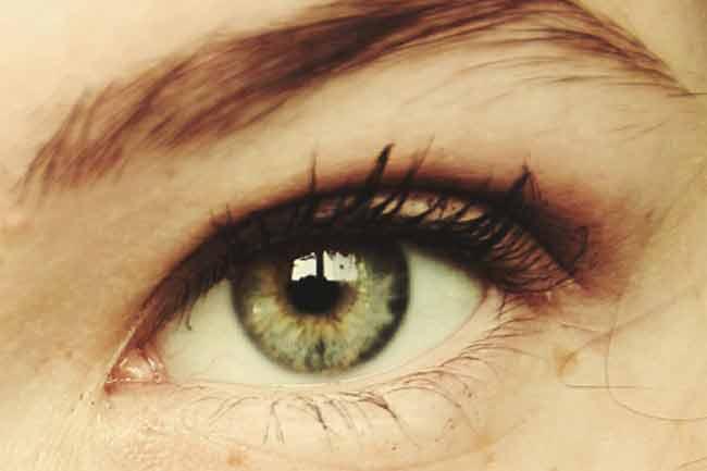 Your eyelashes have mites