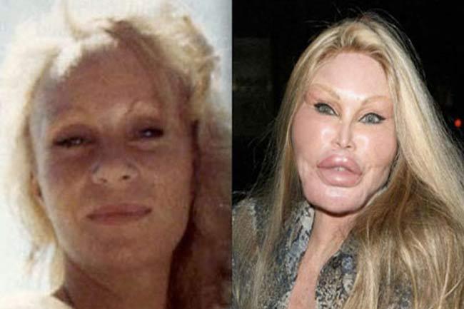 Fifth image of Jocelyn Wildenstein Plastic Surgery Gone Wrong with Want a horror story? Here are 5 plastic surgeries that ...