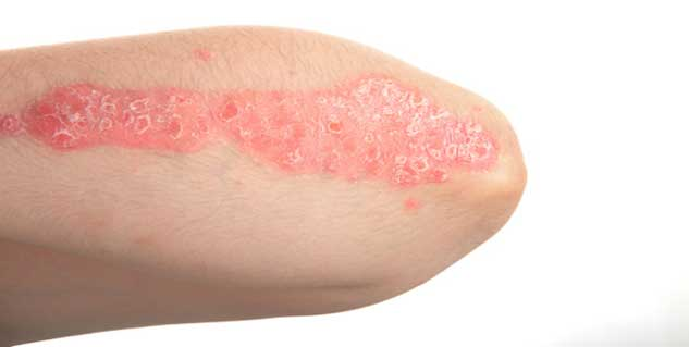 Treating Psoriasis at Home