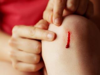 तुरंत खून रोकने के लिए अपनाएं ये घरेलू उपाय