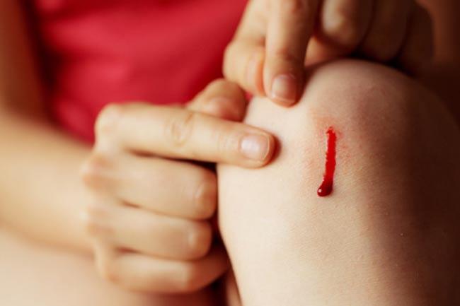 चोट के बाद खून का बहना