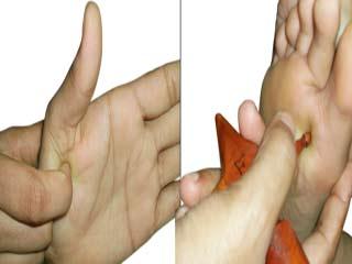 एक्यूप्रेशर से करें थायराइड का उपचार