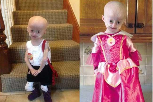 Progeria has no cure