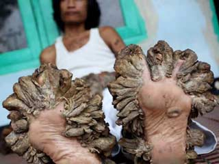 Meet the man who looks like a tree because of this rare disease