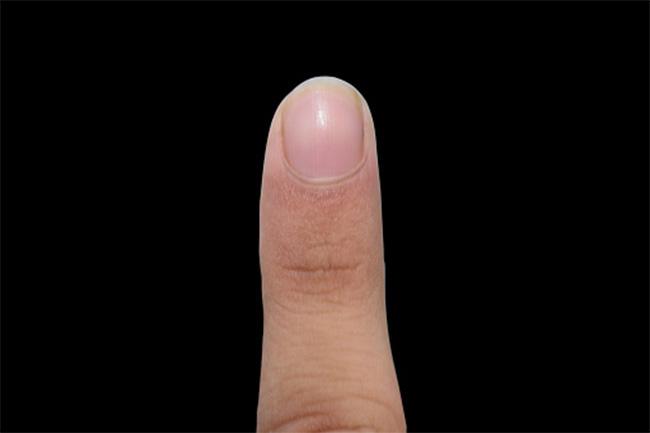 उंगलियों की लम्बाई से पता चलता है - अर्थराइटिस का जोखिम