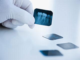 जानें आपको क्यों कराना चाहिए दांतों का एक्स-रे