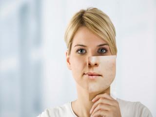 चेहरे से रैशेज दूर करने के प्रभावी व आसान घरेलू उपचार
