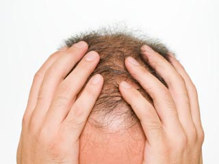 7 Natural Ways to Combat Thyroid-Induced Hair Loss