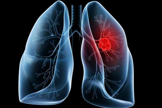 Ct Scans for Early Lung Cancer Detection