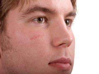 घाव के निशान दूर करने के घरेलू उपाय