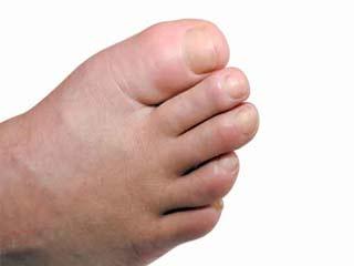 डायबिटीज में पैरों की सूजन कम करने के 8 तरीके