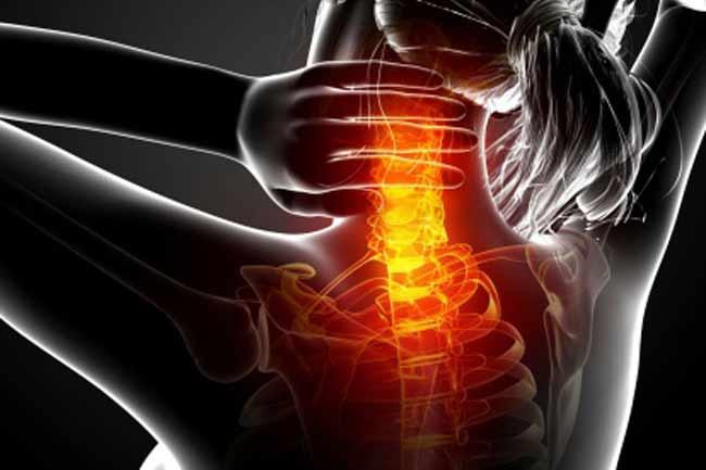 गर्दन में दर्द अर्थात सर्वाइकल स्पांडिलाइसिस