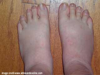 गर्भावस्था के दौरान हाथों और पैरों की सूजन की समस्या