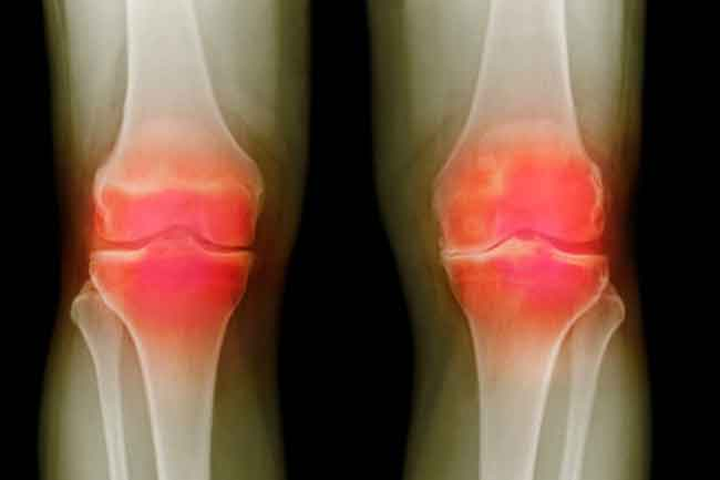 How will the doctor diagnose arthritis?