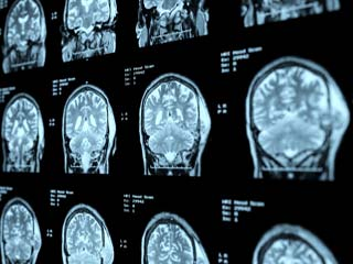 What is the prognosis of Adult Brain Cancer?
