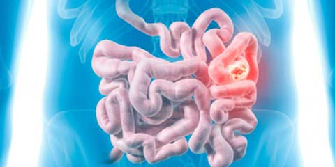What is Small Intestine Cancer?