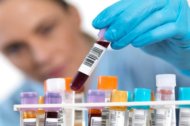 डीएचईए टेस्ट (Dehydroepiandrosterone)