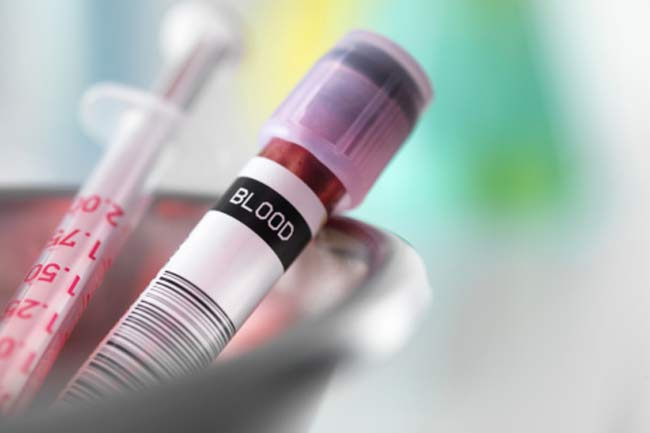 Getting a Mere Blood test can keep you Healthy