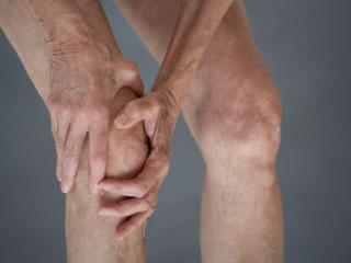 Symptoms of Arthritis in the Knee