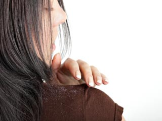 Get Rid of Dandruff Really Fast with these Home Remedies