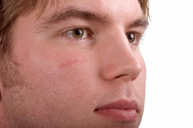 Heals Scars
