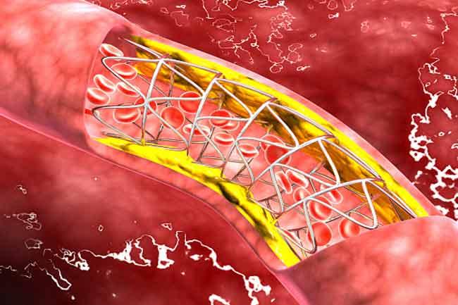 खून में कोलेस्ट्रॉल