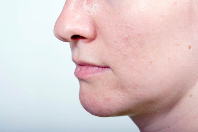 Skin with Open Pores