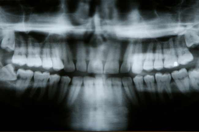 Impacted Wisdom Teeth are Common