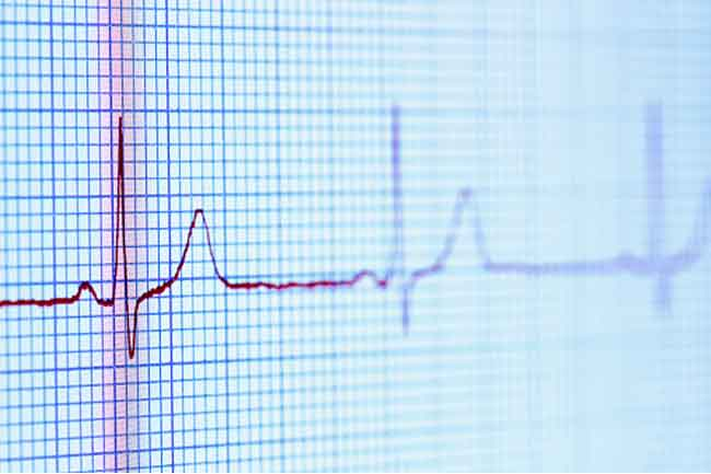 Can Cause Irregular Heart Rhythm