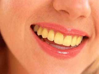 इन 7 आहार और पेय से होता है दांतों में पीलापन