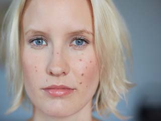 Home remedies for acne marks on face that really work