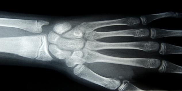 Bone Cancer in Hindi