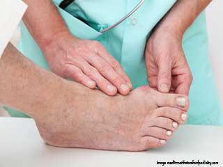 डायबटीज़ में पैरों के कालेपन को कैसे ठीक करें