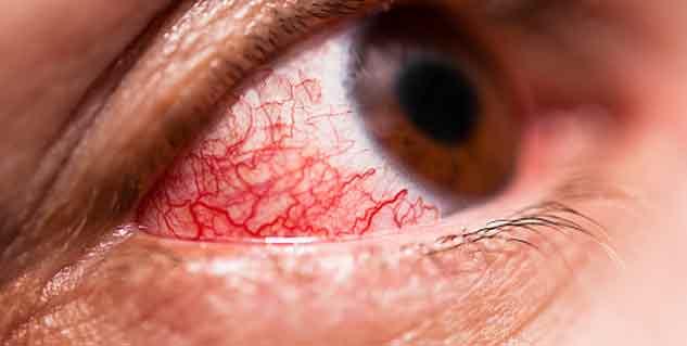 Eye flu treatment